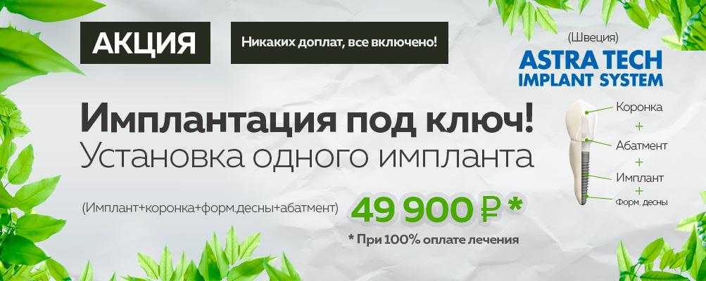 Имплантация зубов Astra Tech под ключ цена 49900 руб в Москве